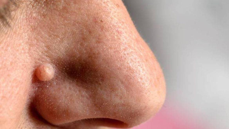 porri della pelle dottor andrea pastore dermatologo