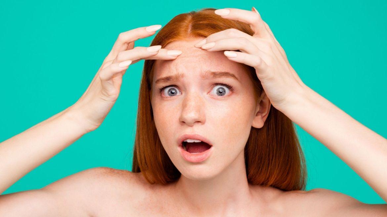 l-acne-il-problema-dei-giovani