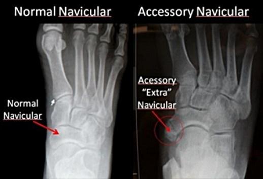extra navicular bone xray