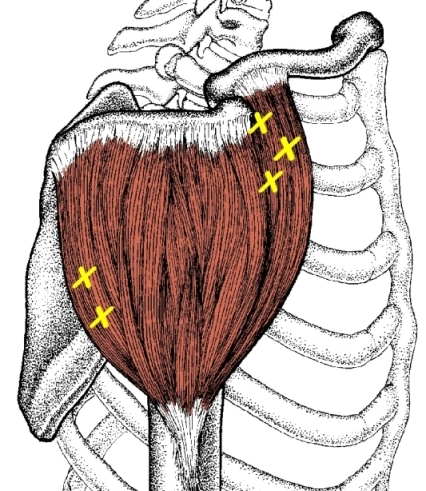 deltoid muscle with trigger points marked