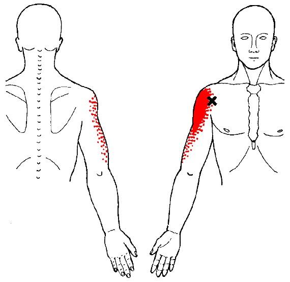 deltoid muscle anterior trigger points illustration