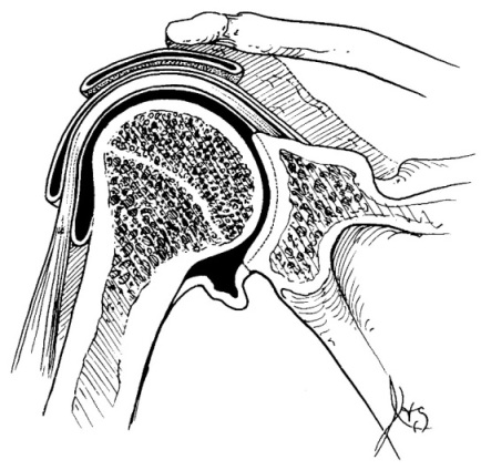 glenohumeral shoulder joint illustration