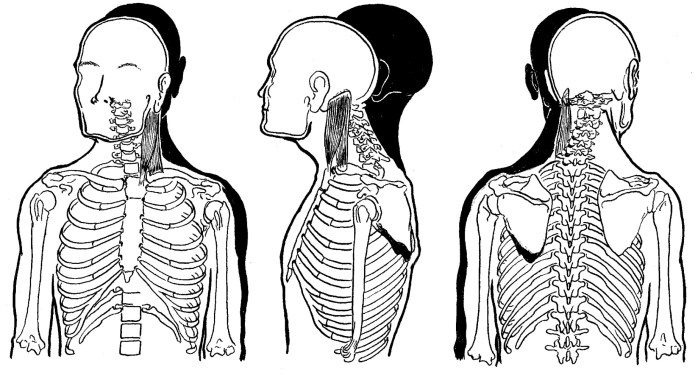 Levator Scapulae Trigger Points Frankenstein Pain Manual Guide