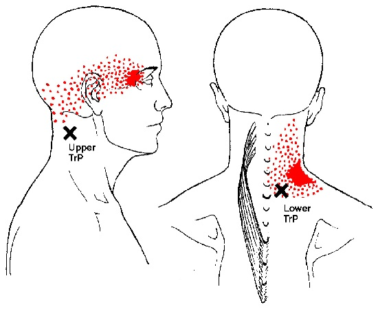 splenius cervicis muscle trigger points