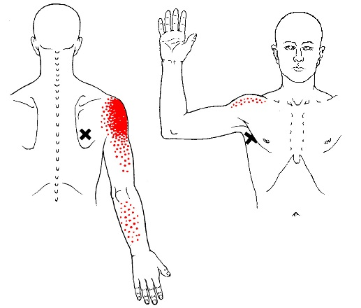 teres major trigger points