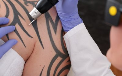 Tattoo Regret? Try Laser Tattoo Removal