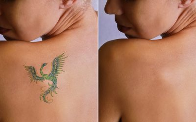 The 10 Most Frequently Asked Questions about Laser Tattoo Removal