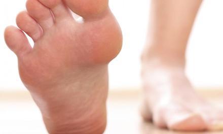 Remedios naturales para aliviar el dolor de talón.