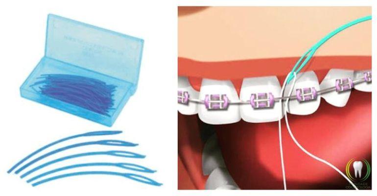6c1ca3a6d Fio Dental e Aparelho Ortodôntico  6 dicas para facilitar o uso ...