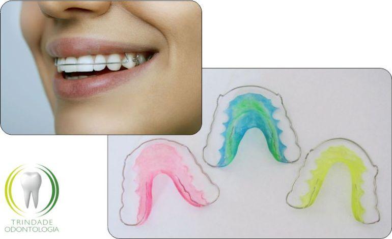 Contencao Ortodontica Veja Como Cuidar Bem Da Sua