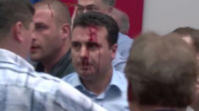 Zaev krvave glave (foto printscreen Radio slobodna Evropa)