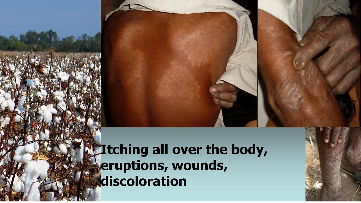 Các nông dân trong một nhà máy sản xuất sợi ở ́n độ bị dị ứng khi làm việc với bông Bt, họ phải bắt buộc sử dụng thuốc chống dị ứng mỗi khi đi làm (ảnh: responsibletechnology.org)