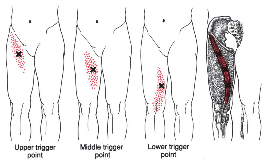 diagram of leg pain
