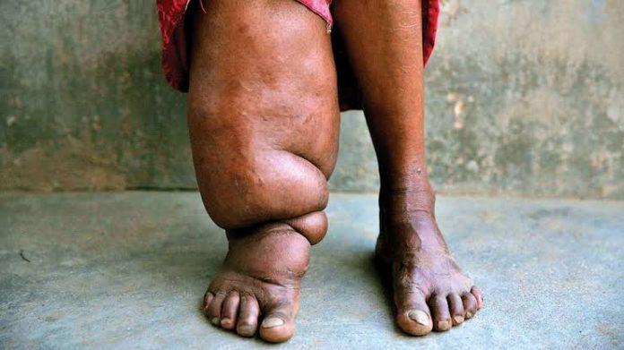 Health Agency Says138m Nigerians Exposed To Elephantiasis