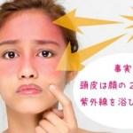 紫外線對頭皮的影響是?防止紫外線傷害的對策!