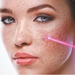 【皮秒功效&術後保養】皮秒詳細解說~ 醫美最有人氣的皮秒雷射!可以有效率無痛除刺青、去斑、除細紋、縮毛孔