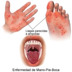 sindrome-mano-pie-boca