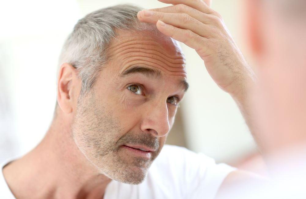 lutter contre l'alopécie