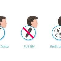 La greffe capillaire, une solution efficace qui s'adapte à vos besoins