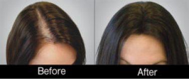 hair restoration Wilson, NC