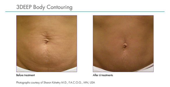 Body contouring before after