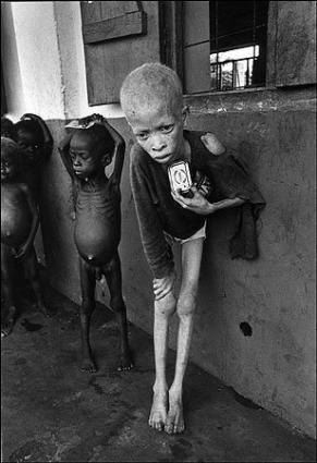Biafra civil war in Nigeria starving children