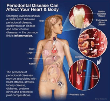 TruFloss Periodontial Disease Infographic