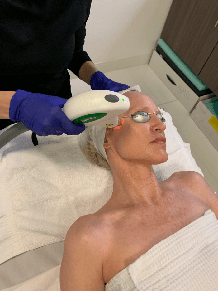 Introducing The Three For Me Laser Treatment | Target Sun Damage, Fine Lines & Facial Veins