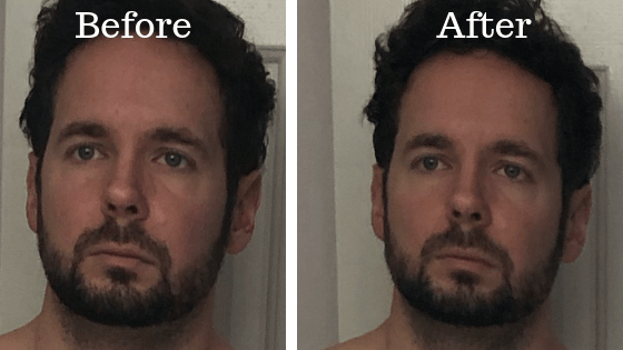 Face before and after 24 hour fast