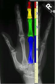 Fibonaci in anatomy