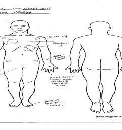 arm body diagram [ 1728 x 1097 Pixel ]