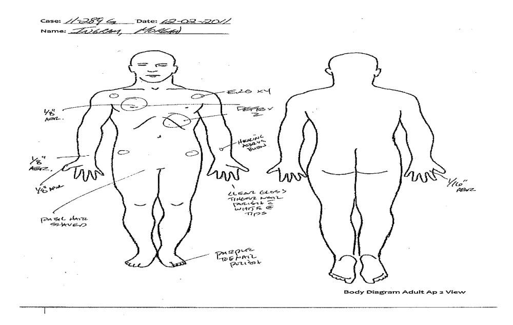 medium resolution of arm body diagram