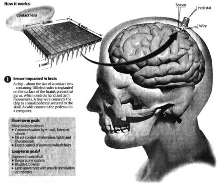 microchip-implant-on-the-brain