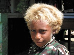Меланезиец-блондин