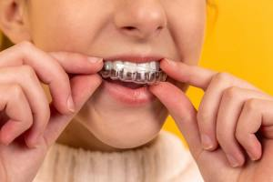 Clear Aligners Straighten Teeth Without Braces