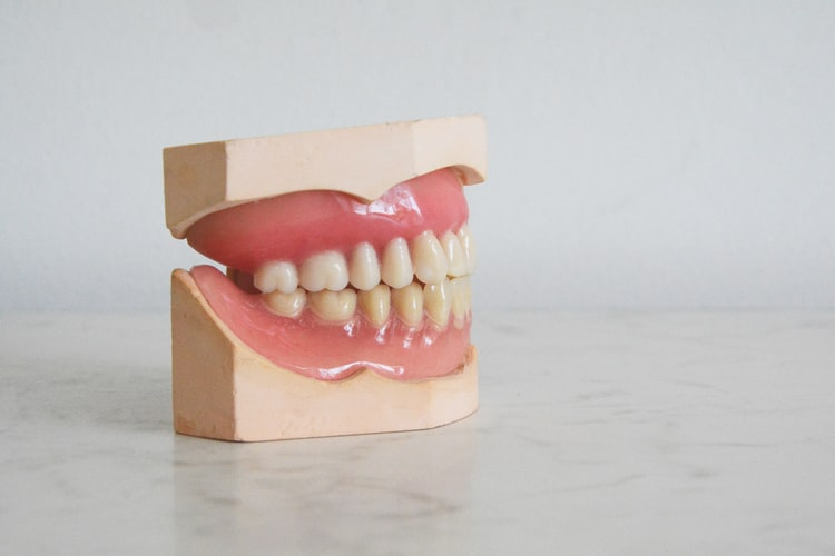 Read more about the article STRAIGHTEN YOUR TEETH WITHOUT ANYONE KNOWING