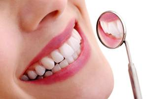 dental clear aligners