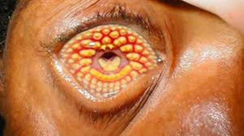 Skin Real Trypophobia Treatment