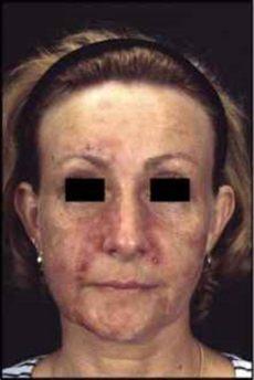 akne tarda homoopathie systemic treatment acne vulgaris vertigo treatment