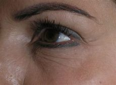 augenfalten lasern kosten lower eyelid surgery before after pics