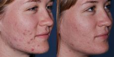obagi clenziderm before and after obagi treatments leeds bradford and ilkley skin days