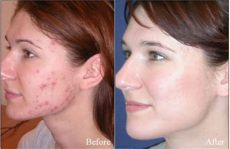 tretinoin 1 cream before and after secret skin whitening tretinoin before and after how to get permanent white skin