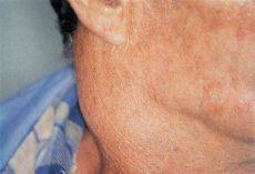 lymphstau hals losen wie ist die behandlung lymphknoten im hals