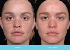 obagi clenziderm before and after obagi before after scg rejuvenation