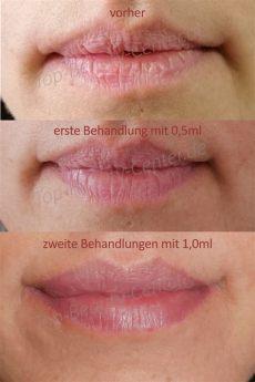 lippen falten wegspritzen kosten lippen aufspritzen und faltenunterspritzung ohne nadel schon ab 99
