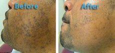 pfb vanish chromabright before and after before and after pfb vanish 2 packedman