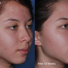 obagi clenziderm before and after obagi clenziderm foaming cleanser salicylic acid skinshop ireland