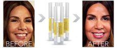dr oz wrinkle remover dr oz instant wrinkle reducer best wrinkle remover