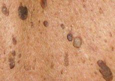 alterswarzen entfernen kosten schweiz warzenarten im 220 berblick welche warze haben sie hilfe bei warzen