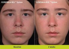 obagi clenziderm md system review - Obagi Clenziderm Before And After
